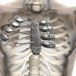 Primer implante de costillas impresas en 3D, recibido por un paciente de cáncer