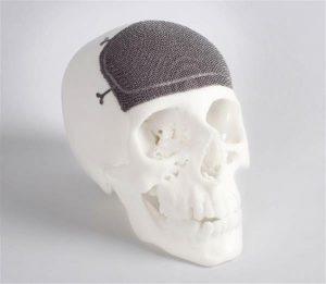 Arcam impresiín 3d con metal implantes