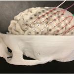 Cerebros y cráneos impresos en 3D para planificación quirúrgica