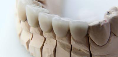 Dental3d