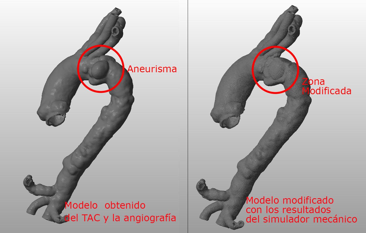 Ingeniería inversa de una aorta