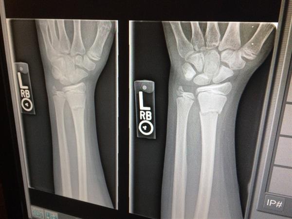 radiografia_mano