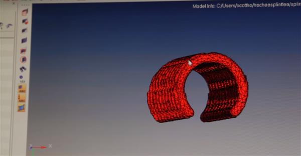 life-saving-3d-printed-custom-splint-steps-closer-to-market-2