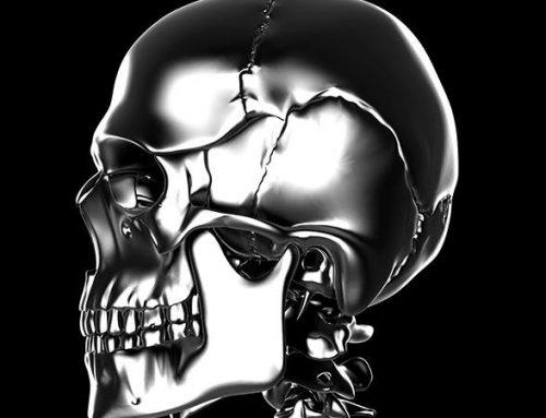 Neurocirujano usa un cráneo de titanio impreso en 3d para salvar a una mujer