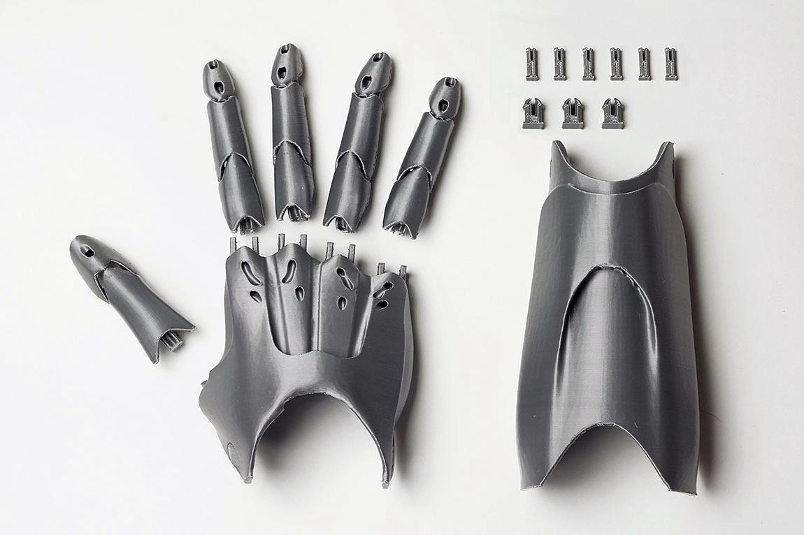 3D-printing-prostheticskjhgfd