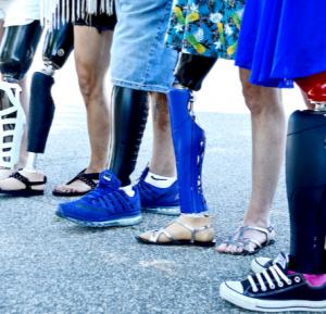 protesis-piernas